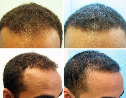 Hairline Restoration For African American Patient, hairline restoration for African Americans