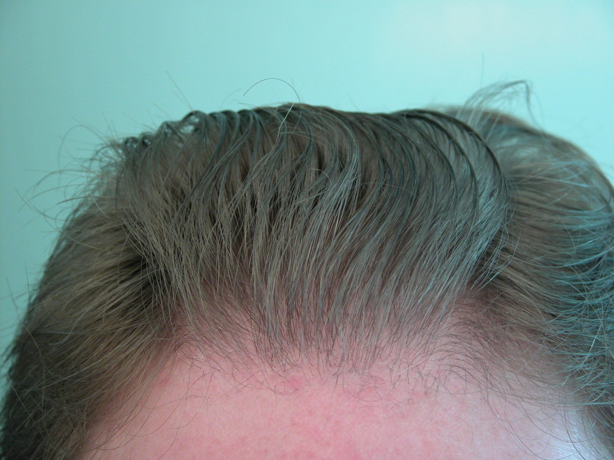 UGraft FUE Hair Transplant pictures