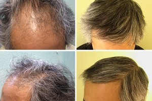 FUE Transplant on Asian Patient