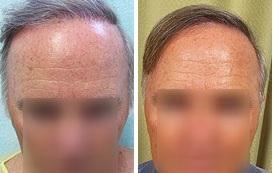 Info on Hair Transplant Surgery
