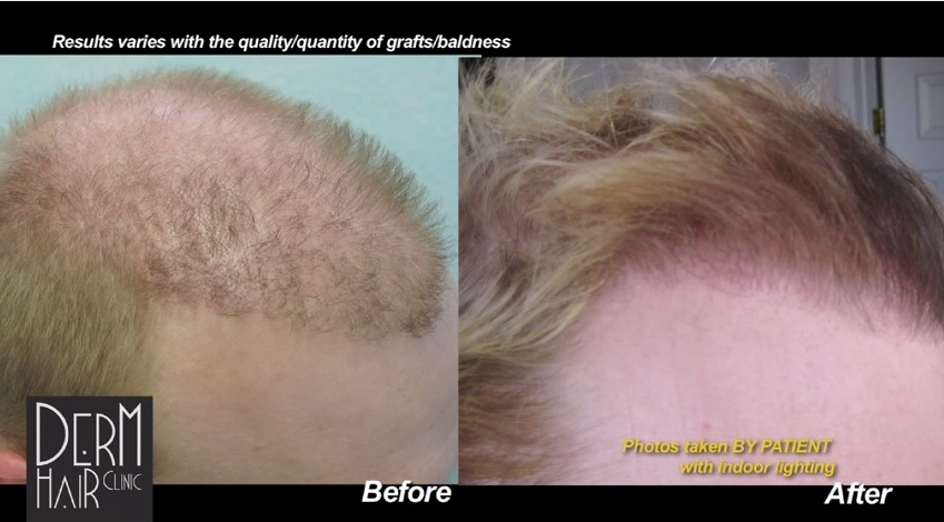 Hairline Repair With Head and Beard Hair