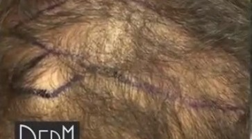 Diffuse Thinning From Shock Loss - Before Beard Hair Transplant