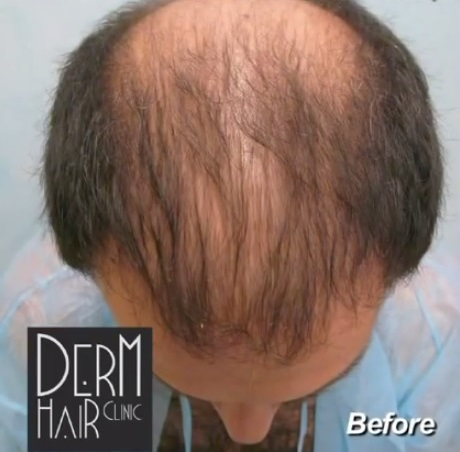 Patient Before His Facial Head to Hair Transplant Surgery