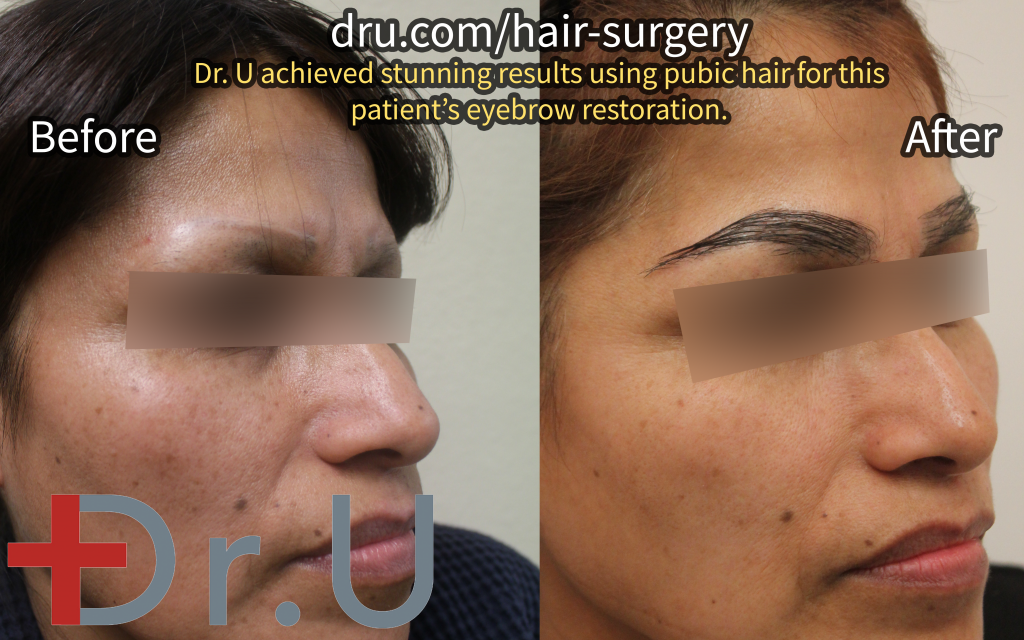 The woman's eyebrow transplant before and after photos.*