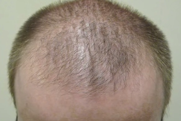 Patient With Male Pattern Hair Loss