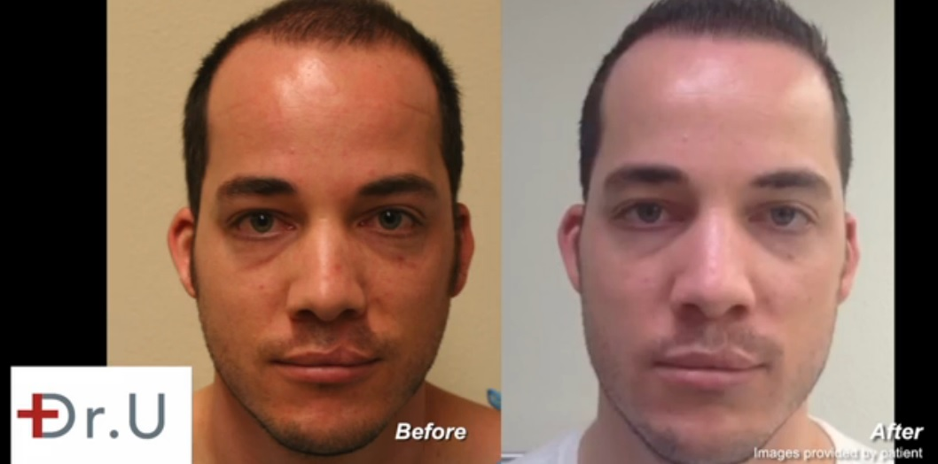 Young Patient | Advanced FUE Hair Transplant