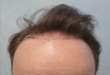 Patient Before His FUE Hairline Restoration, Before and After FUE