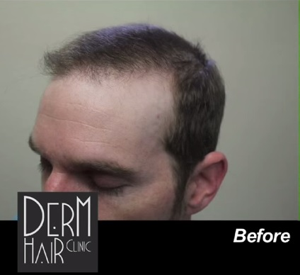 Patient Before His FUE Repair Surgery