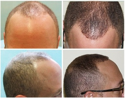 FUE Transplant For Modest Hairline Advancement