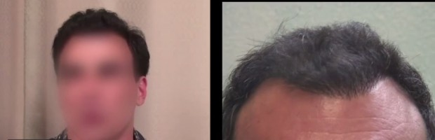 Incredible Results Through Follicular Unit Extraction
