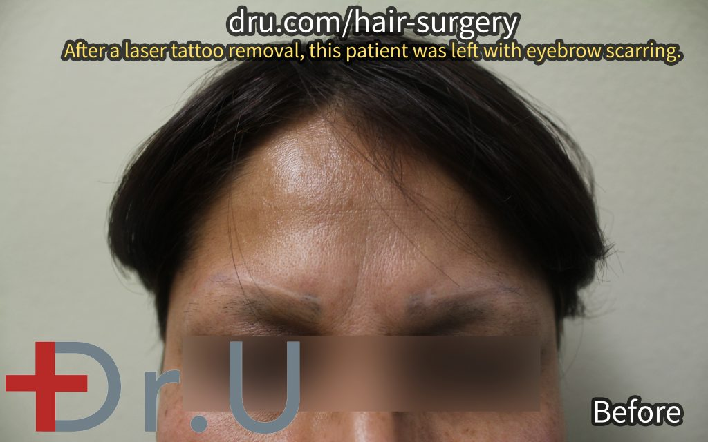 This Long Beach, Los Angeles patient came to Dr. U for eyebrow implants to cover up laser tattoo removal scars in the eyebrow area.*