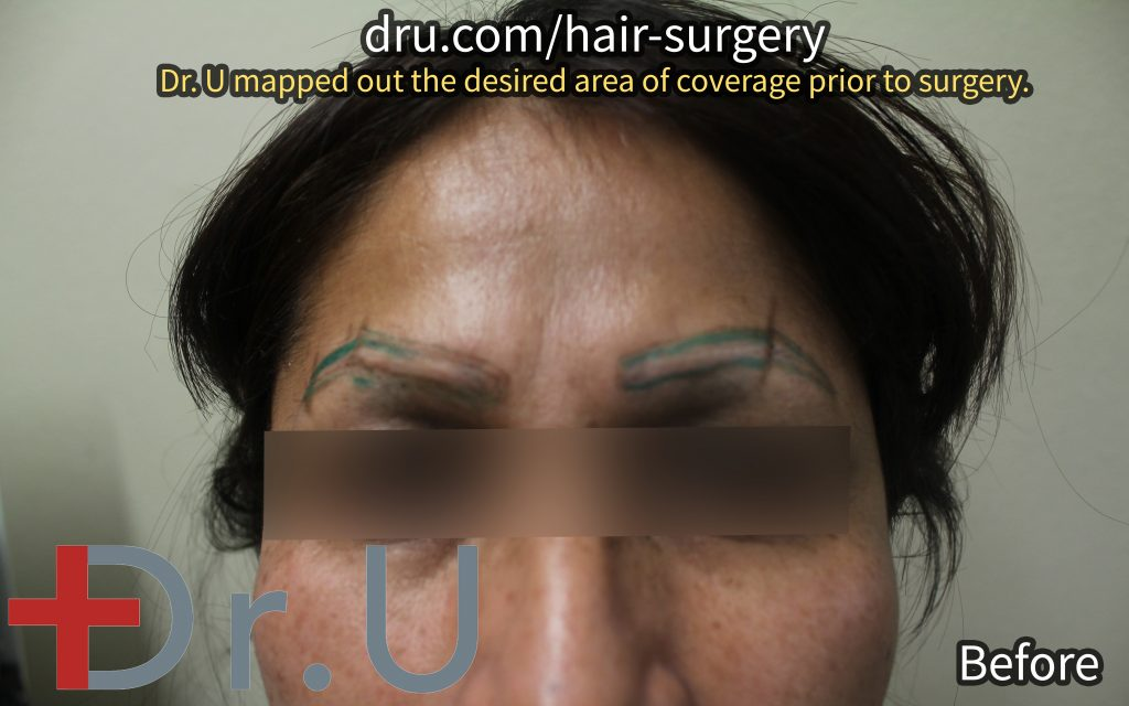 The patient in her initial planning period. Dr. U mapped where he intended to embed the eyebrow implants for her FUE body hair transplant repair procedure.*