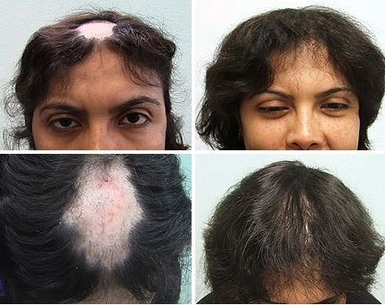 Ugraft Fue Hair Transplant For Lupus Patients By Dr Umar