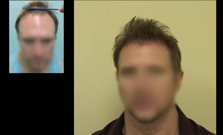 Best Hair Transplant in the World|Patient Education