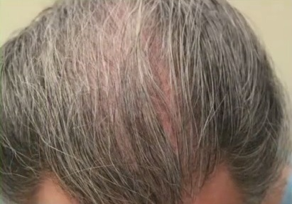 Patient Within Sparseness on Scalp Before His BHT Surgery
