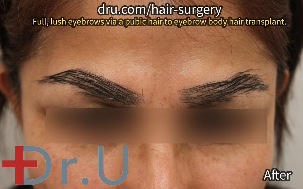 The patient's eyebrow implants after her FUE body hair transplant procedure.*