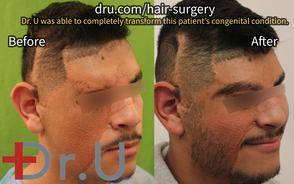This life-changing FUE body hair transplant was used to rebuild this patient's right eyebrow and beard in the wake of the removal of a large birthmark.*