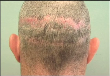 Challenging Hair Transplant Repair - Multiple Strip Scars