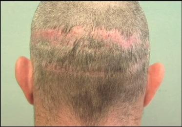 Challenging Hair Transplant Repair - Multiple Strip Scars