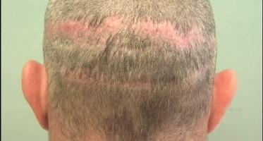 BHT Hair Transplant Repair For Strip Surgery Patient