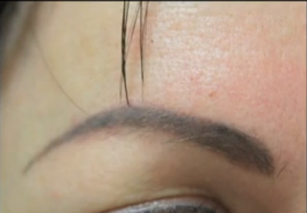 Patient Featured on KNBC Before Her Surgery, eyebrow transplant by Dr U