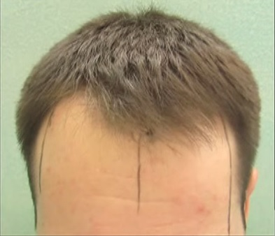 Hairline Depletion Shown On Patient Before FUE Surgery