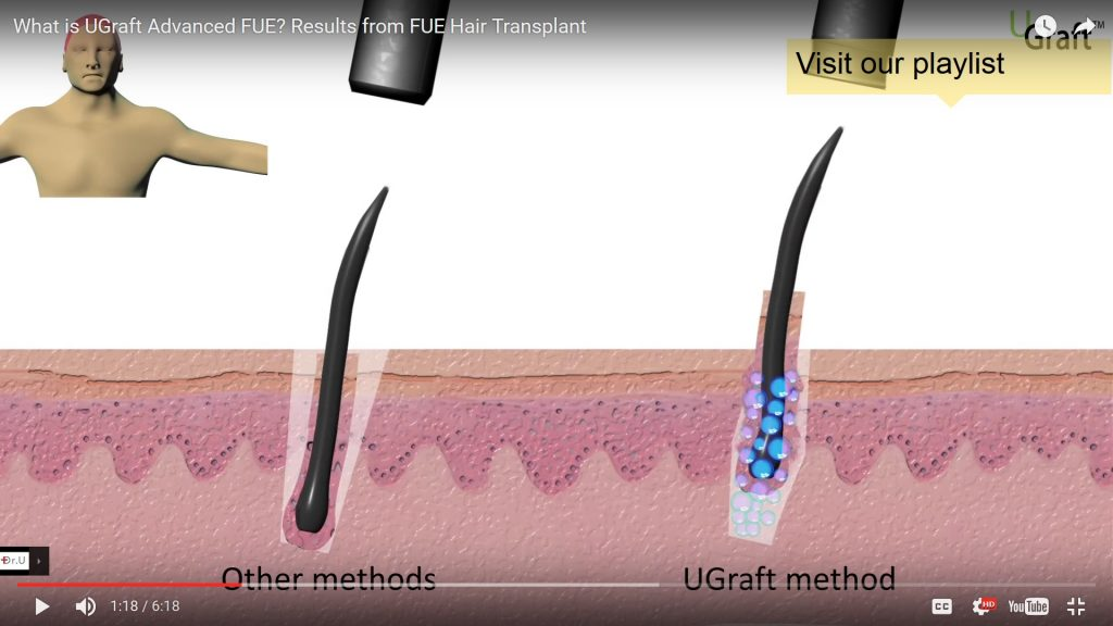 UGraft drops protective fluid shield around the follicle during FUE