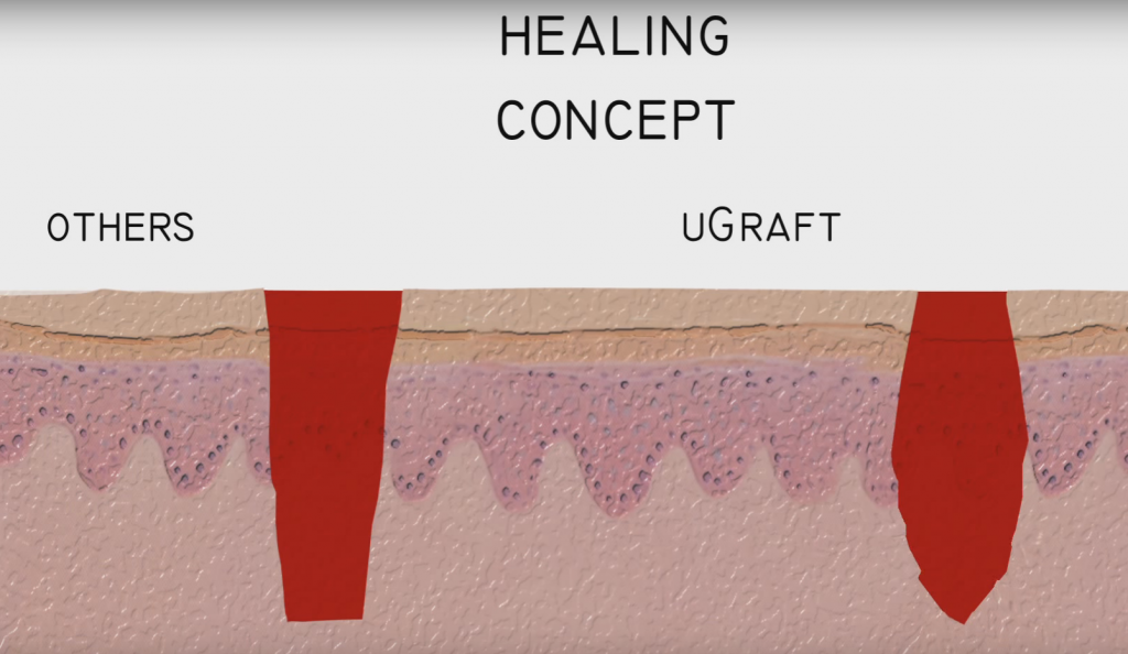 UGraft wound have more inverted than everted edges