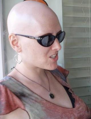 Alopecia Totalis Patient