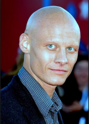 Tomas Lemarquis - Actor With Alopecia Universalis