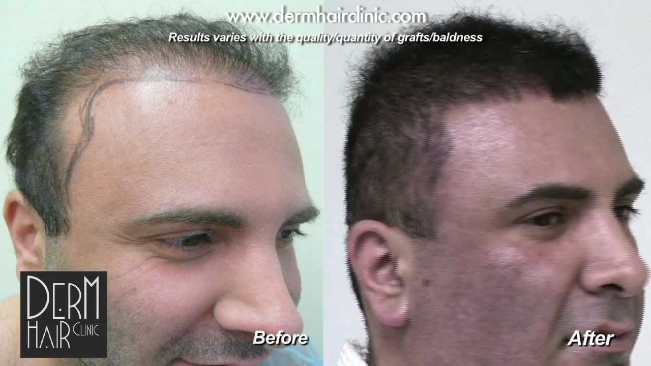 Temple Point Restoration Dermhair Clinic Los Angeles 1