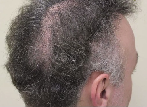 Photo of Patient Before His BHT Hair Repair Surgery