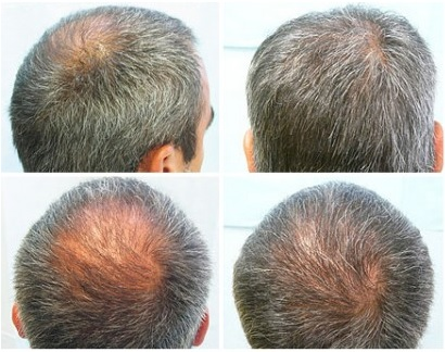 Hair Restoration| Body Hair Transplant| Articles| Dr. U
