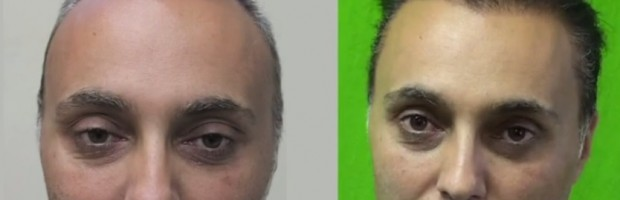 Hair Transplant Education| Hair Loss Questions and Answers
