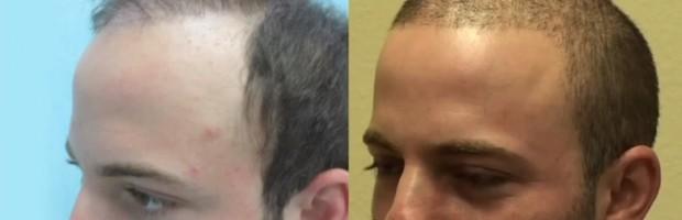 Beard & Head Hair grafts| Patient Before & After Surgery