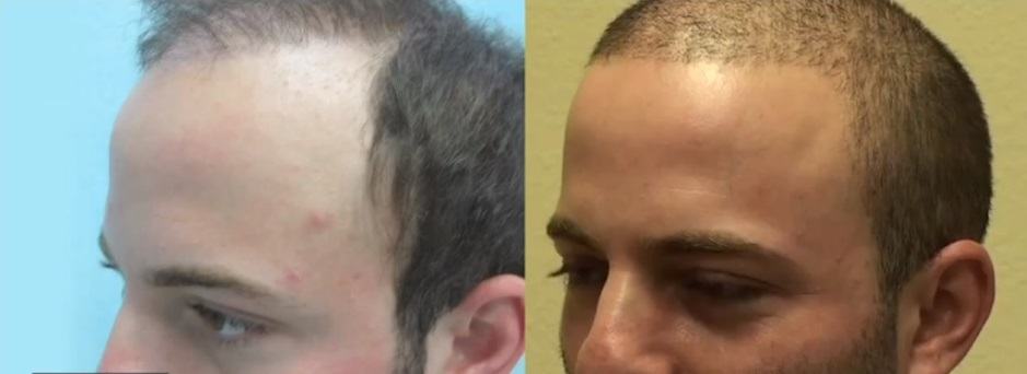 Beard & Head Hair grafts| Patient Before & After Surgery