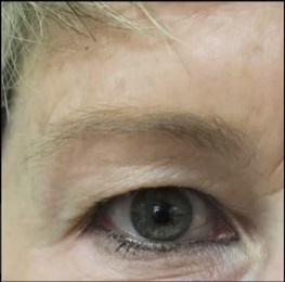 Patient's Sparse Brows Before Surgery