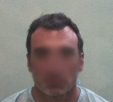 Patient Before His FUE Hair Transplant Surgery