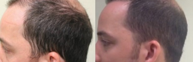 Patient Before and After Advanced FUE