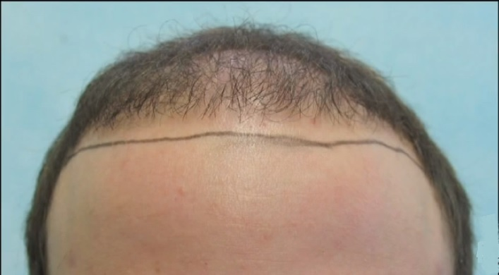 Patient With Receded Hairline Before BHT Repair Surgery