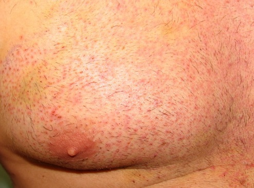 Body Hair Transplant Surgery|Wound Healing Results| Skin Types
