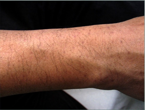 Wound Healing Variations After Body Hair Transplantation Donor Area Pigmentation
