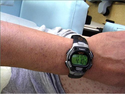 BHT Surgery Arm Hair |Wound Healing Hyperpigmentation| Six Weeks Post Op