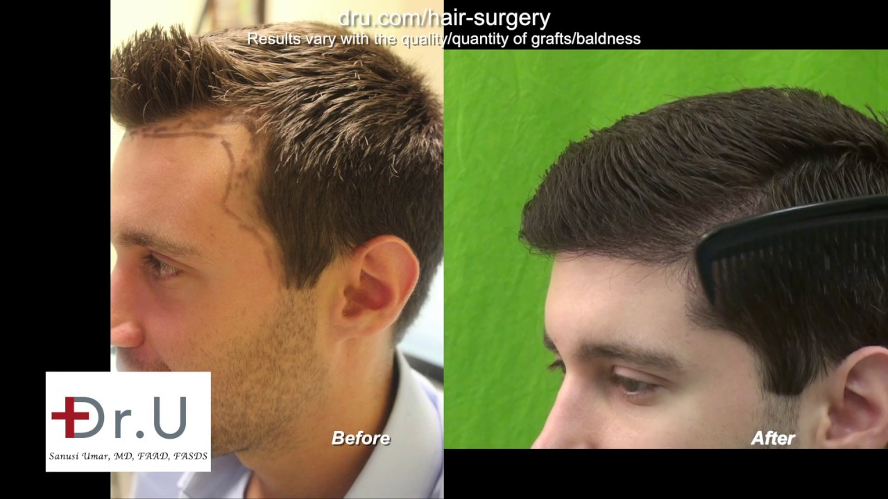 Fore head size reduction by DrUGraft FUE Hair Transplant
