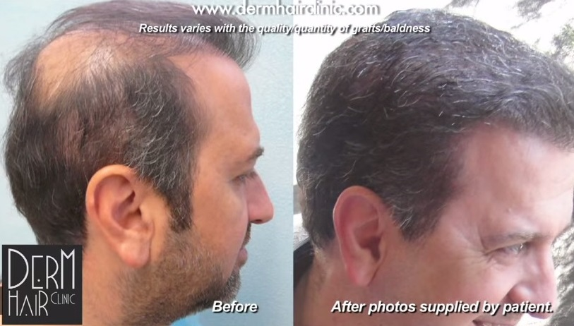 body hair to head hair repair by UGraft follicular unit extraction in Dr U's Los Angeles Clinic - Two sessions were needed to complete the 14,000 graft extraction and insertions