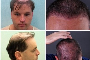 Hair Restoration Testimonials by G.Dowles