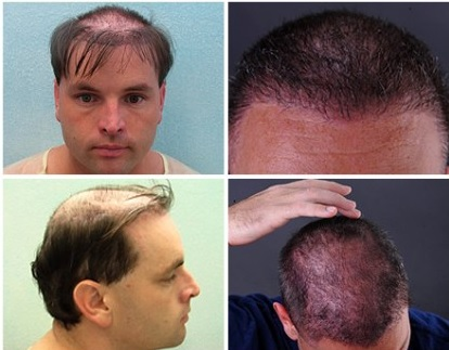 Body Hair Transplant Photos|Before & After Images