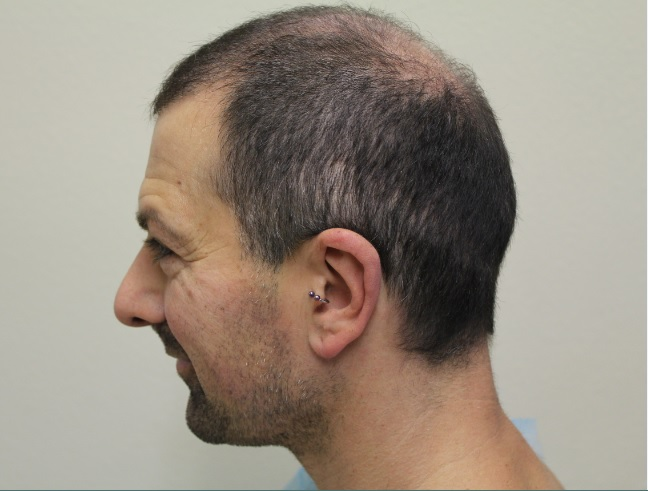 Patient Showing Poor Growth Before His BHT Surgery