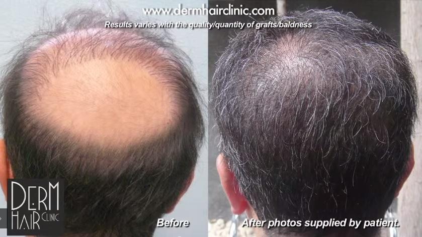 Impossible Hair Transplant Repair - 14000 BHT Grafts