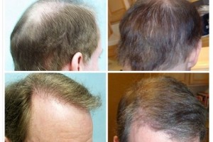 Hair Transplant Results on FUE Patient